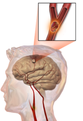 Stroke Caused by Malpractice